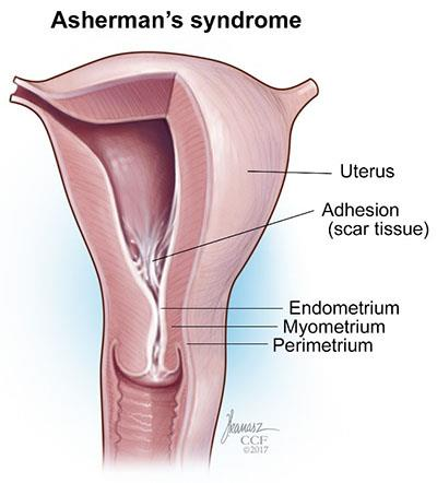 Asherman's Syndrome: A Challenge To Woman Hood.