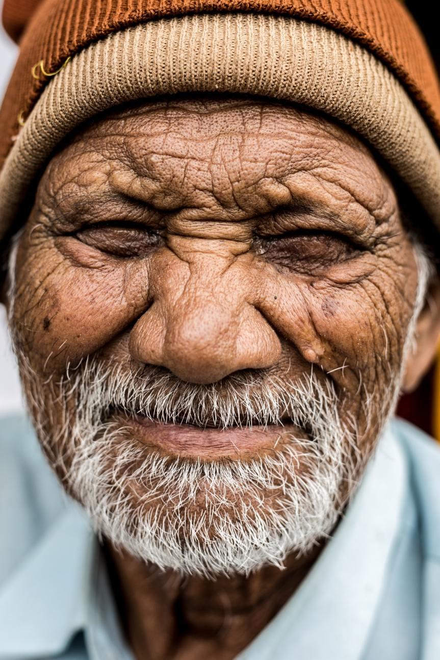 Wrinkles: The Joy of Nursing Aged Patients | My Journal of Nursing Adventures | Ayinla Daniel.RN